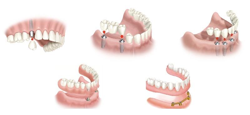 Implante2-07