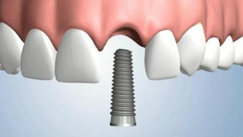 diente perdido implante dental des