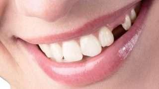perdida piezas dentales