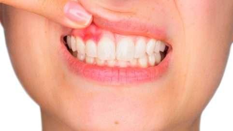enfermedad periodontal tratamiento