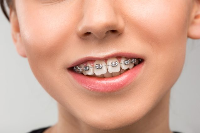 higiene oral ortodoncia